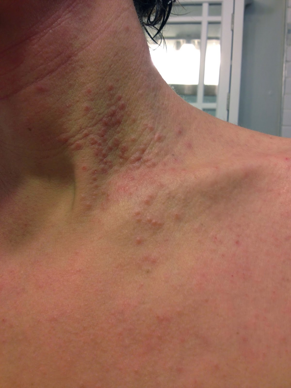 My Journey With Itchy Skin A Tough 3 Weeks Herpes
