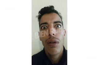 """""""Placé en isolement total"""", un détenu s'évade d'un centre spécialisé près de Chalon"""
