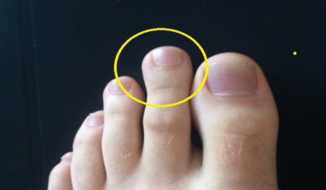 Look closely at your second toe. If it is this long, you have a Greek foot.