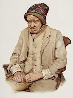 demensia-pada-alzheimer's-disease