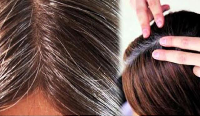 mengatasi rambut beruban