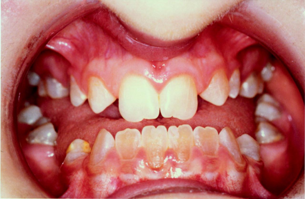 dentinog u00e9nese imperfeita - osteog u00e9nese imperfeita