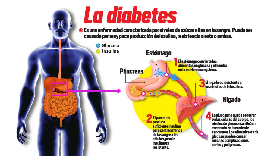 7 alimentos que protegen contra la diabetes stevia natural - Alimentos contra diabetes ...