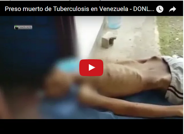 Fallece preso de Tuberculosis por falta de medicamentos