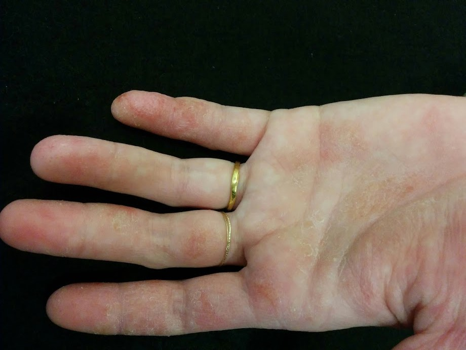 高雄皮膚科推薦-游懿聖醫師: 濕疹!到底是皮膚太濕。還是皮膚太乾?