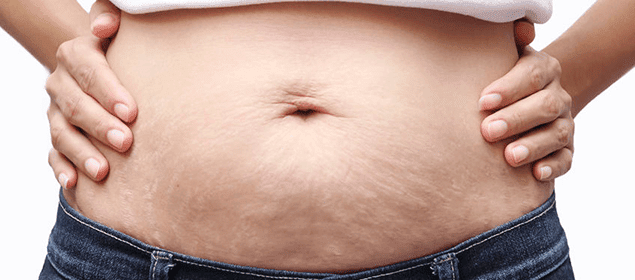 abdomen con estrías
