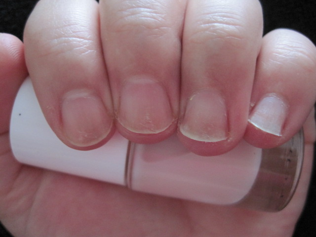 krótkie zniszczone paznokcie