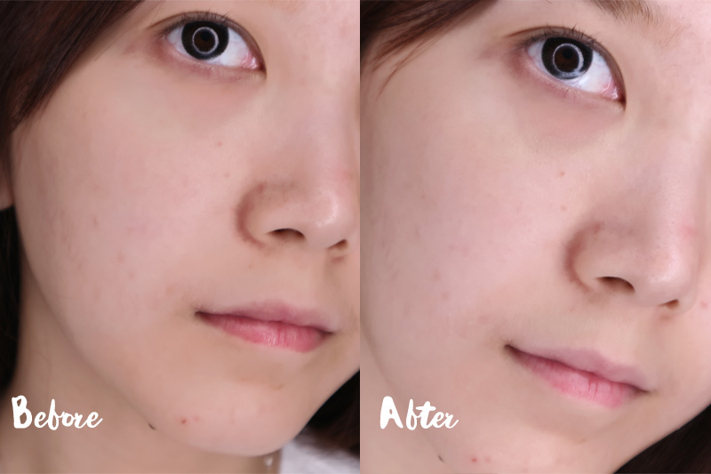 Before - After Bioderma Hydrabio