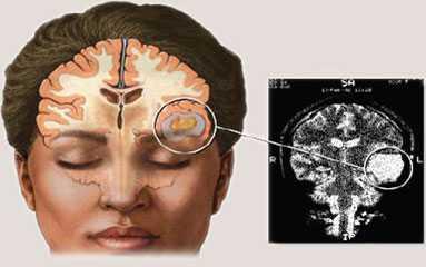 kanker otak primer