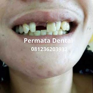 gambar gigi yang akan memakai gigi crown