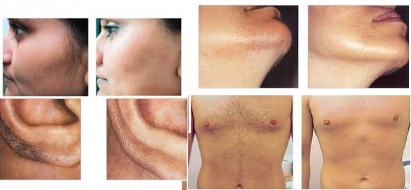 hårborttagning gel