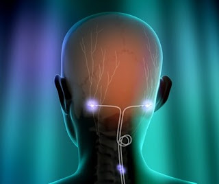 Important Things To Know About Overcoming Migraine