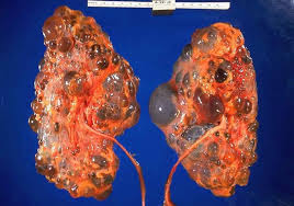 penyakit batu ginjal