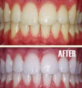 How To Whiten Your Teeth Naturally In Just 1 Day