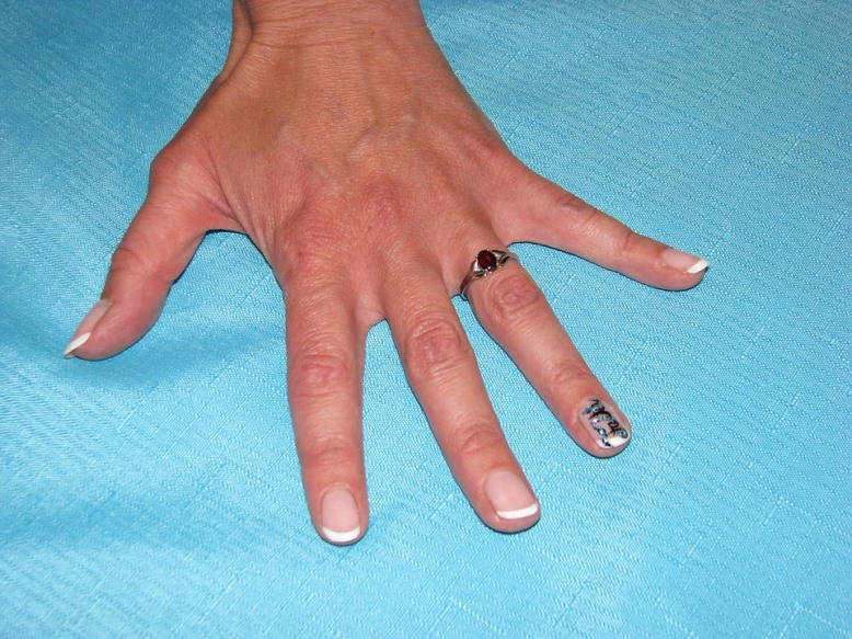 DIY Moisturizing Nail Soak Strengthens Winter Nails
