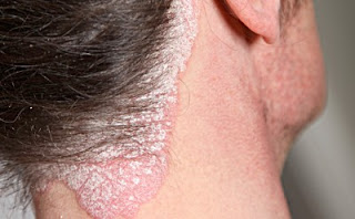 Obati Gatal-Gatal Eksim Pada Kulit Kepala