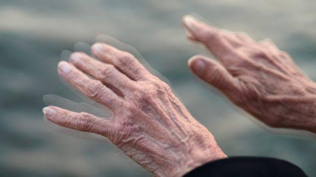 fisioterapi pada Parkinson