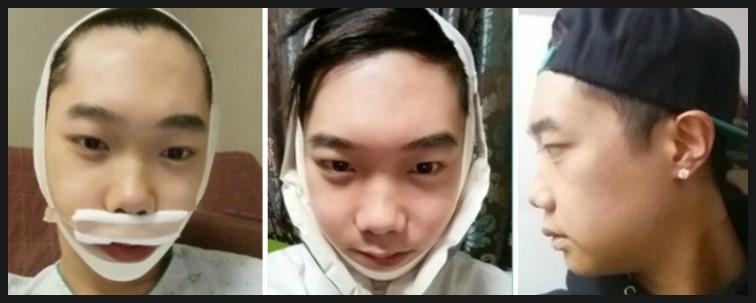 ID Hospital Korea Plastic Surgery: Man double jaw surgery ...