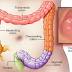 50% Of All Colon Cancer Deaths Could Be Avoided If Everyone Did These 10 Natural Things