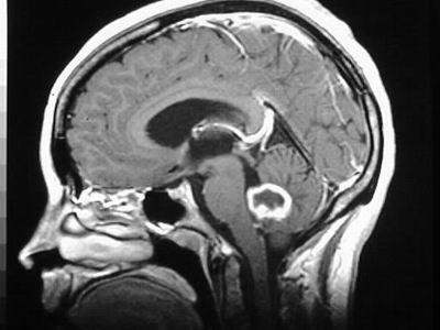 edema cerebral radioterapia
