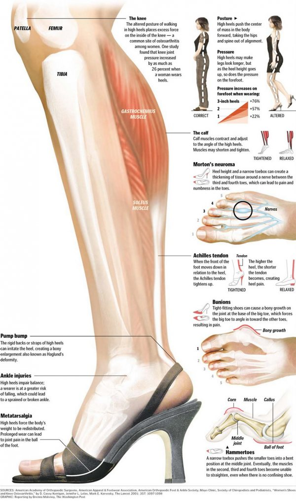 Pain In Calf Wearing Flat Shoes