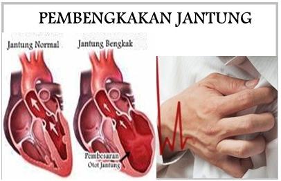 Image result for jantung bengkak