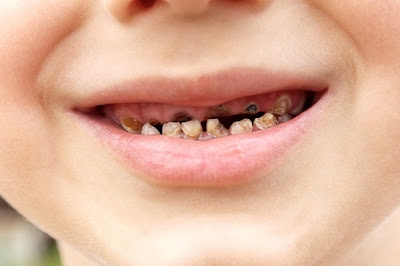 có nên tẩy trắng răng cho trẻ không -6