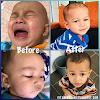 Set Mandian Yang Bagus Untuk Kulit Bayi Eczema