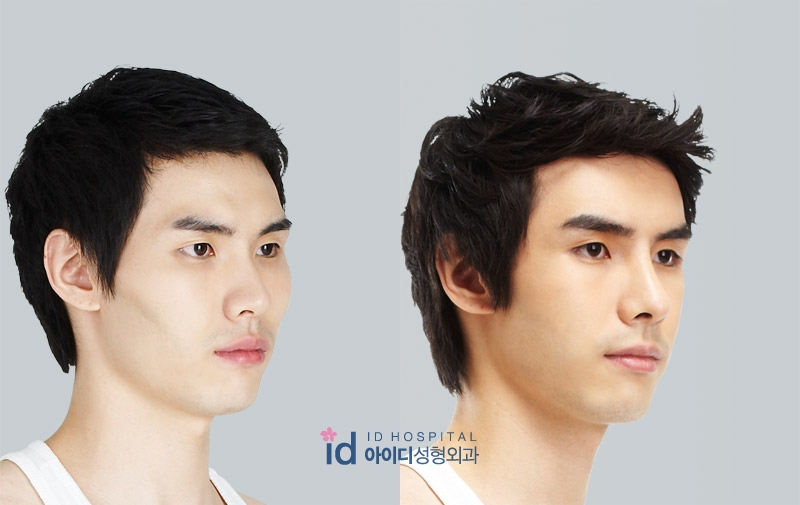 ID Hospital Korea Plastic Surgery: men plastic surgery ...