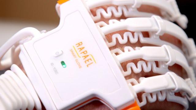 Esta luva inteligente ajuda pacientes com AVC a recuperarem os movimentos das mãos, transformando a fisioterapia em um jogo