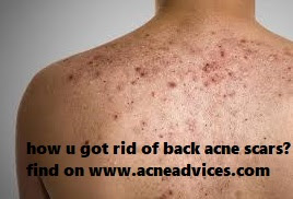 How I got rid of my back acne scars naturally