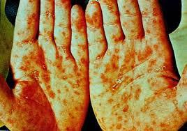 Sipilis pada tangan