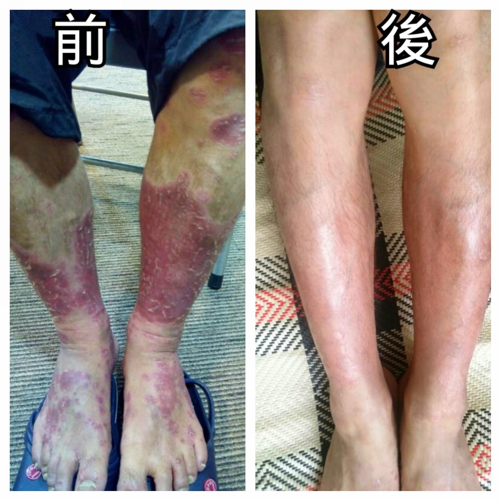 牛皮癬 (銀屑病)治療 - Koon Hoi Yu Matthew (Jim): 五月 2014