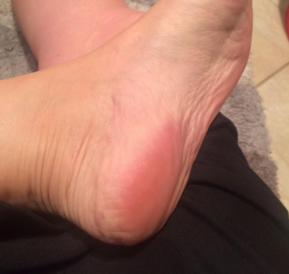 cracked heels, scholl eulactol