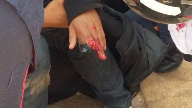 Motociclista tem dedo decepado em grave acidente na capital