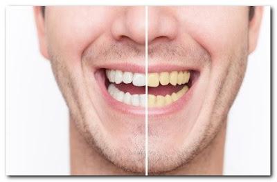 Gigi Anda Kuning? Mungkin Ini Penyebabnya