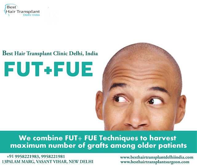 FUE hair surgery in delhi, hair loss treatment in delhi, hair transplant surgery in delhi, best hair restoration surgery in india, fue hair transplant delhi,  #scalpreduction, #prptreatment, #besthairtransplant, #hairsurgeon, #FUE, #FUT, #moustaches,  #beards , #eyebrows,  #eyelash, #mesotherapy, #hairreplacmentcost