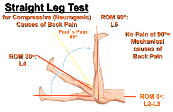Image result for straight leg raising test