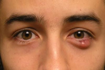 Bị lẹo mắt kiêng ăn gì