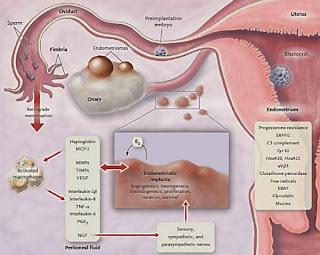 endometrioza imagini
