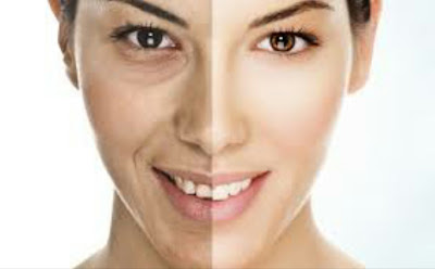 وصفة منزلية سحرية للتخلص من تجاعيد الوجه نهائياً و تجديد شباب البشرة...
