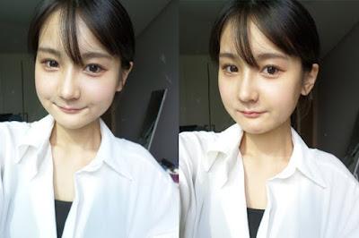 3 bulan sesudah reduksi rahang persegi & operasi dua rahang Wonjin