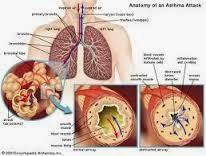 Obat Sesak Nafas atau Asma