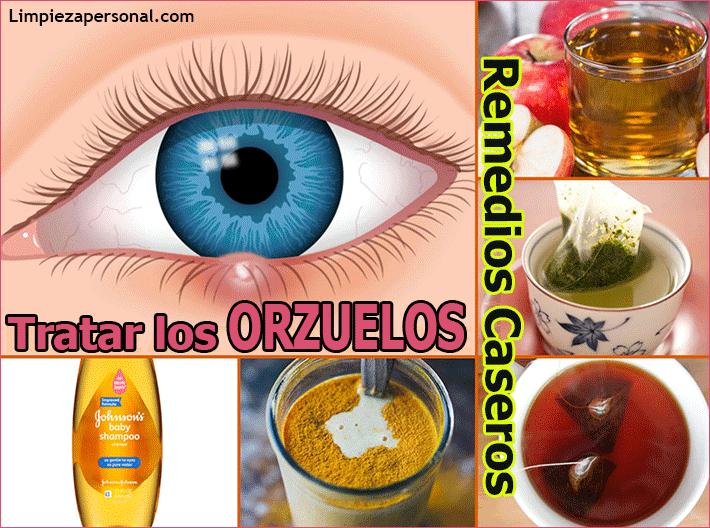 como curar un orzuelo en el ojo remedios caseros
