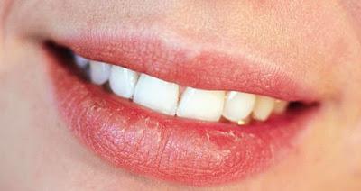 Tips Ampuh Untuk Mengatasi Bibir Kering