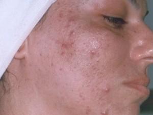 Pimple 5