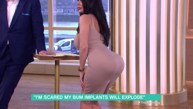 woman-with-botched-bum-implants-unable-to-sit-down
