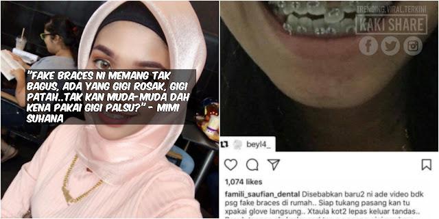 Trend Pakai Fake Braces Sebab Harga Murah Akhirnya 'Makan Diri'