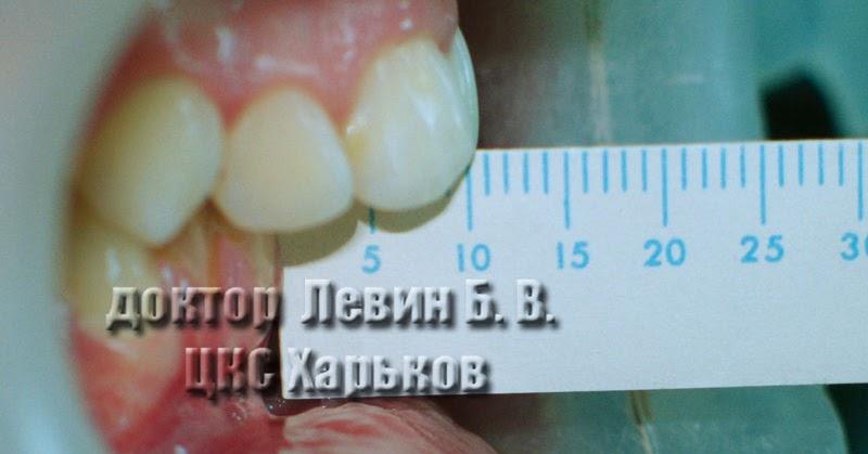 Дистальный прикус (прогнатическая окклюзия): как исправить брекетами, фото до и после исправления