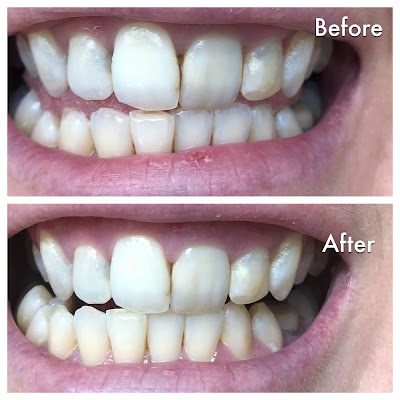 Before & After Pic of HiSmile Teeth Whitening Kit